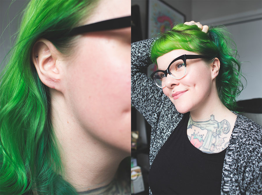 stretched ear surgery, stretched ears